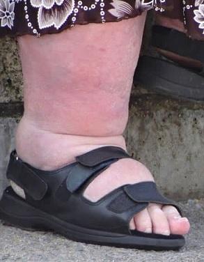 Otoky kotníků, chodidel a nohou jsou příznakem městnavého srdečního selhání