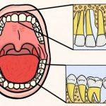Léčba paradentózy v pokročilém stádiu – jak se dělá?