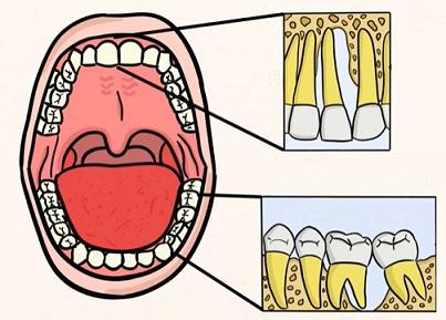 Pokročilá paradentóza se dále nese ve znamení úbytku kosti, zhoršení stavu závěsného aparátu zubů i zánětu parodontálních tkání.