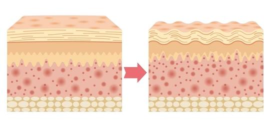 Při celulitidě dochází ke zvětšenému objemu podkožních tukových buněk, které jsou proti povrchu kůže vytlačovány. V tomto místě je pak omezen průtok krve a lymfy.