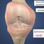 Synovitida kolene – příznaky, příčina a léčba (rehabilitace)