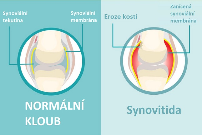 Synovitida je zánět synoviálních membrán