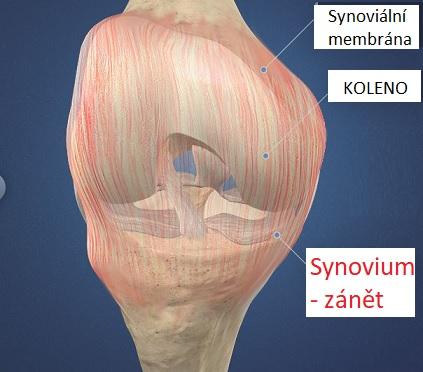 Synovitida je zánět synoviální blány kloubu, která vystýlá vnitřek kloubu a produkuje kloubní maz (synovii)