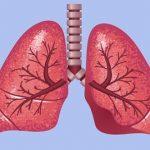 Akutní respirační selhání – co je to – příznaky, příčiny a léčba