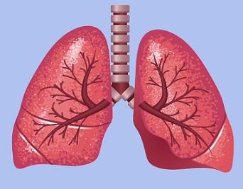 Plíce - Akutní respirační selhání