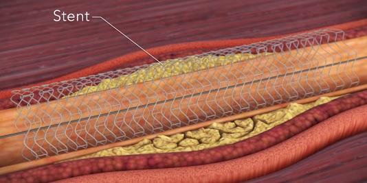Umístěný stent