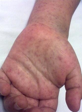 Vyrážka cca po 6-7 dnech nemoci
