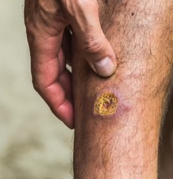 Kožní leishmanióza na noze