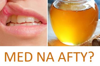 Dejte kvalitní med na lžíci, dejte do úst a zajistěte, aby se med dostal na afty