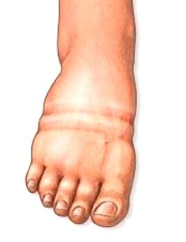 Jak řešit oteklé nohy v létě?