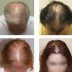 Androgenetická (androgenní) alopecie – co je to – příznaky, příčiny a léčba