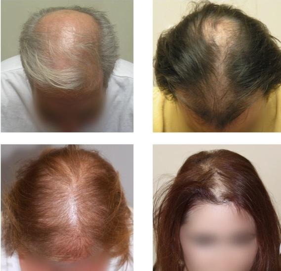 Takto vypadá androgenetická alopecie u mužů a žen