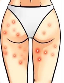 Akné na stehnech se dá léčit
