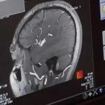 Mozková mlha po nemoci Covid-19 – příznaky, příčiny a léčba