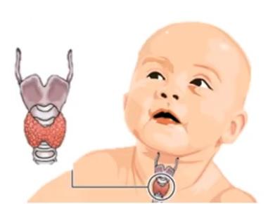 Kretinismus je stav silně zakrnělého fyzického a duševního růstu v důsledku neléčeného vrozeného nedostatku hormonů štítné žlázy (vrozená hypotyreóza). Vrozená hypotyreóza může být endemická, genetická nebo sporadická.