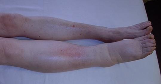 Lymfedém nohy