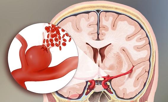 Obrázek - mozkové aneurysma