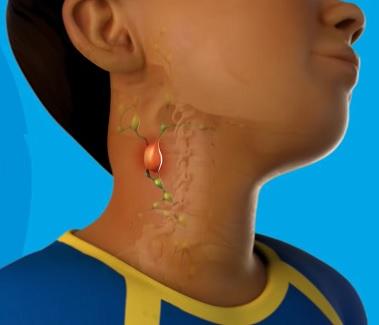 Zduření lymfatických žláz (neboli uzlin) je běžné u infekčních i jiných onemocnění.
