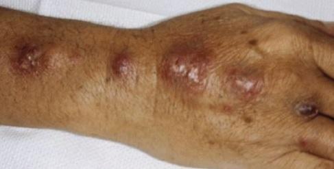 Sporotrichóza - příznaky - boule a vředy