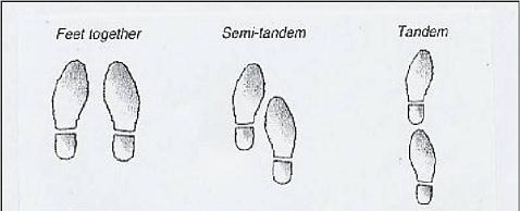I takto můžete mít nohy při Rombergově testu
